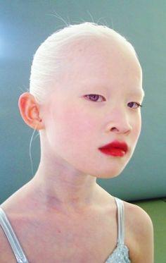 albino 2